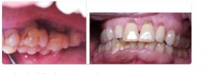 What are the periodontal treatments in Adelaide
